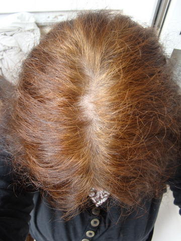 Haare brechen ab kur