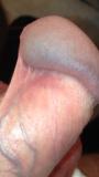 rezeptiver geschlechtsverkehr penis juckt nach geschlechtsverkehr