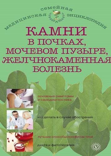 ВасильеваАлександра - Камни в почках, мочевом пузыре, желчнокаменная болезнь