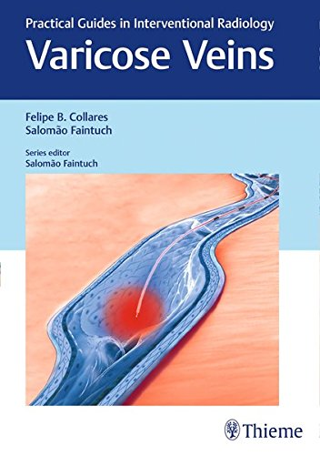 : Varicose Veins Practical Guides in Interventional Radiology