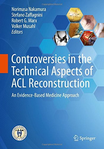 Controversies in the Technical Aspects of Acl Reconstruction An Evidence Based Medicine Approach