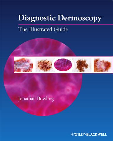 Diagnostic Dermoscopy The Illustrated Guide True Pdf