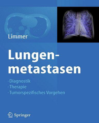 : Lungenmetastasen Diagnostik Therapie Tumorspezifisches Vorgehen