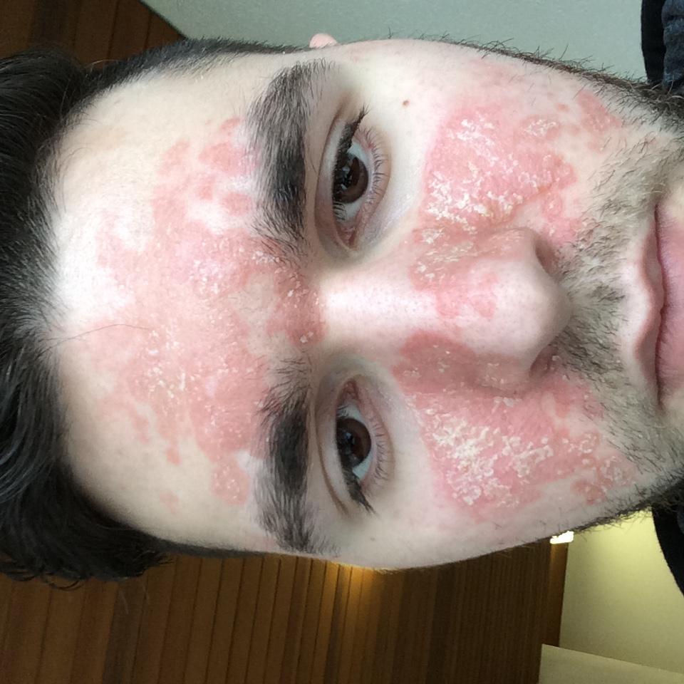 Angemessene Ernährung bei seborrhoischer Dermatitis